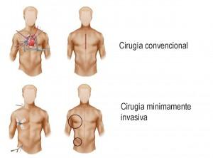 Cirugia cardiaca mimimanente invasiva