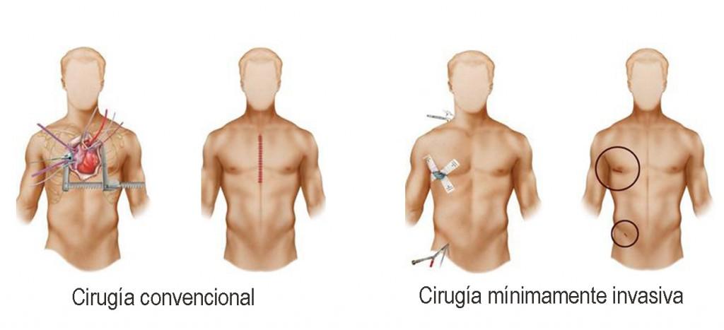 Comparacion cirugias copia