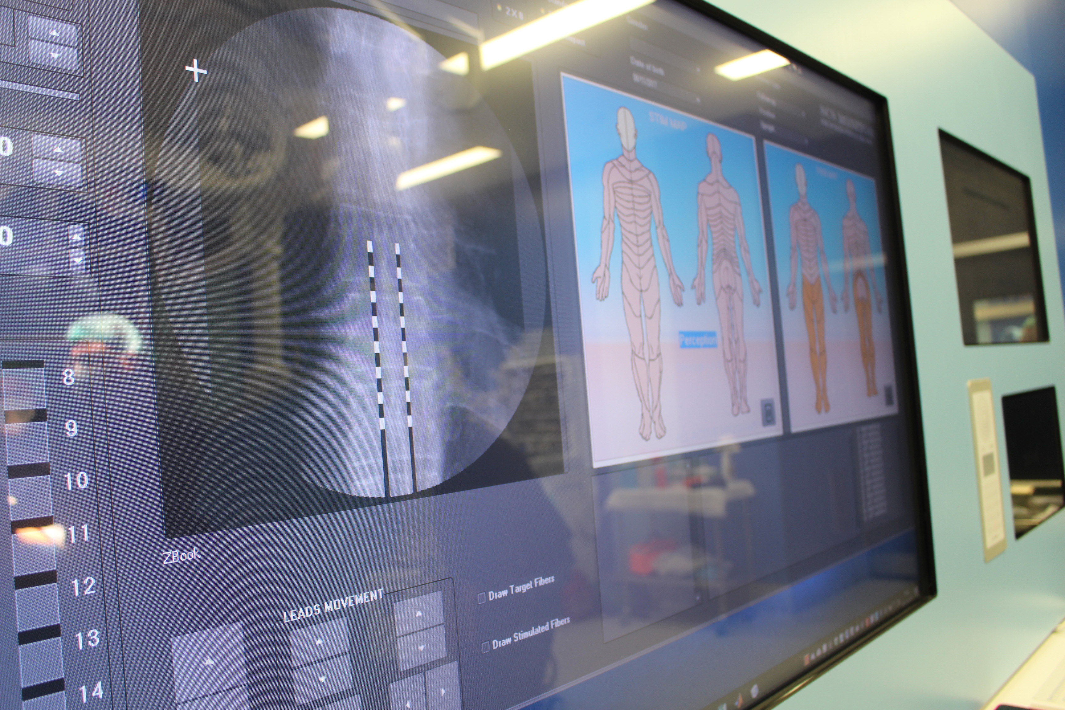 2017 11 08 Intervencion neuroestimulador pantalla CHGUV